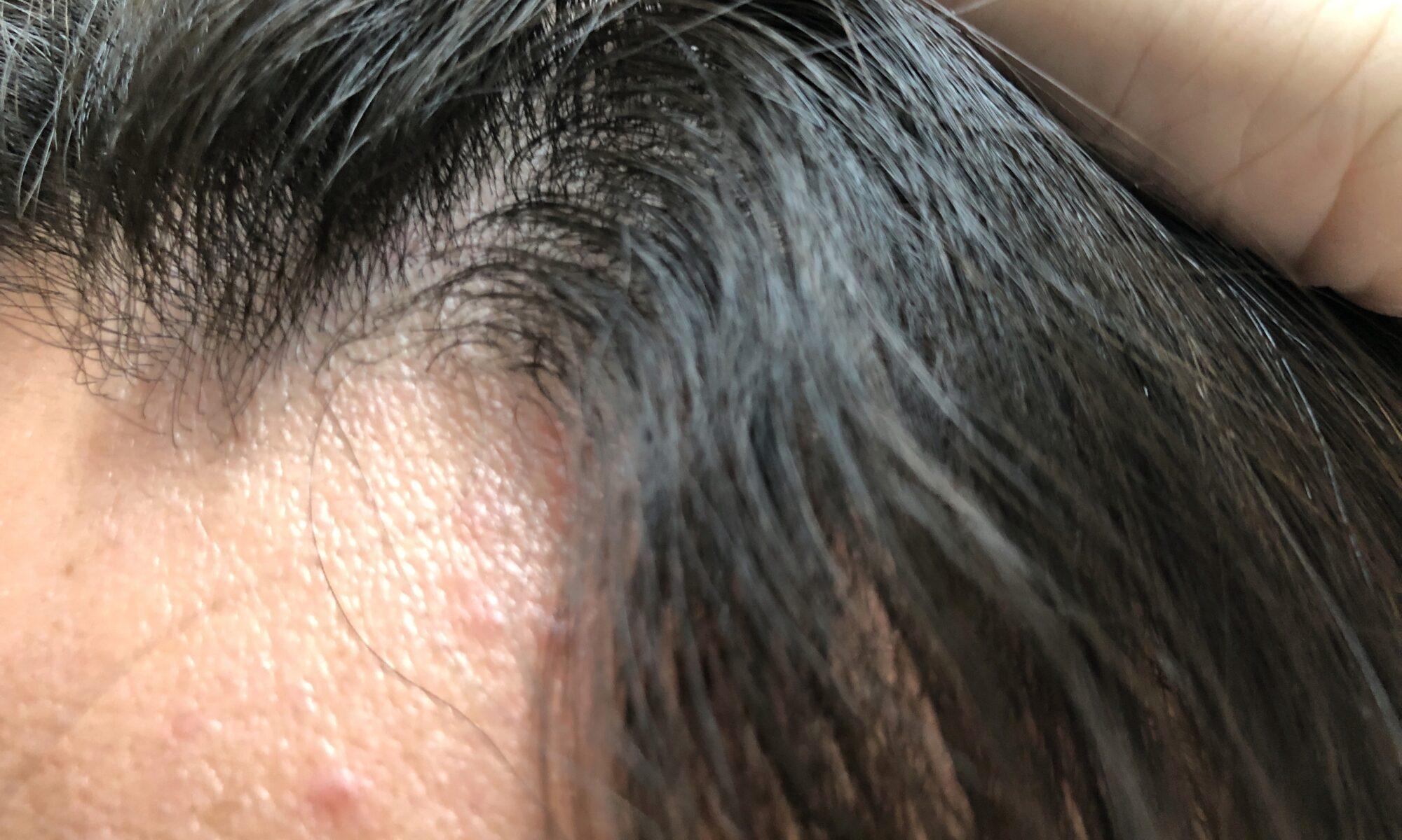 前髪のサイド部分が特にウネウネが強いです。縮毛矯正から2か月くらいで頭が四角になってきますw
