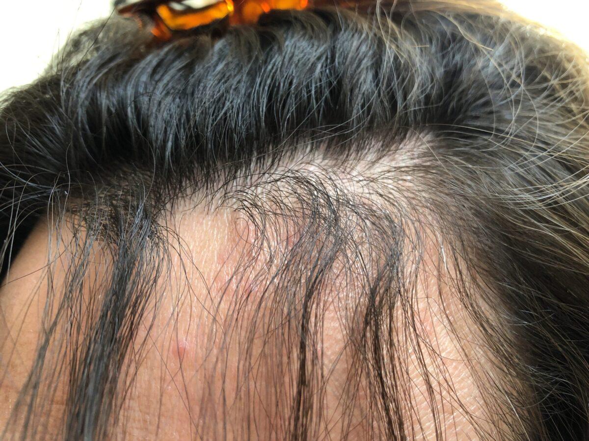 前回の縮毛矯正から一か月。根本はだいぶウネウネしてきました。あまり髪質は変わってない気がする