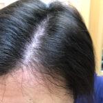 頭皮マッサージでくせ毛を治す。長期観察記録3か月目(あきらかな変化を感じてきた感あり)