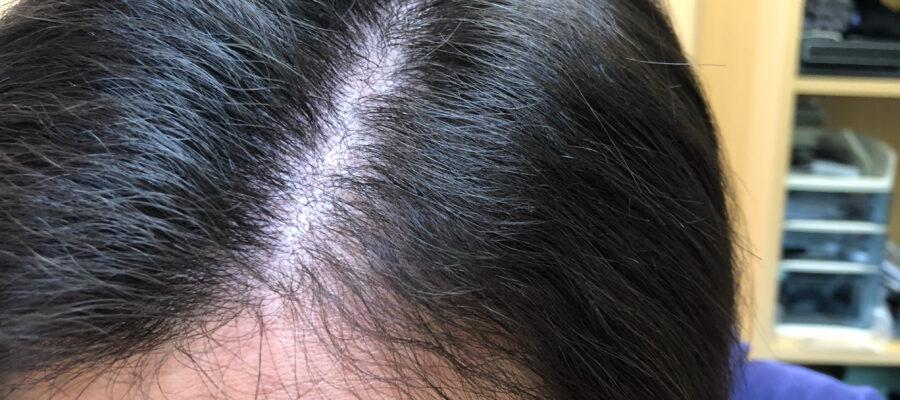 頭皮マッサージを初めて3か月経過しました。全然直毛ではないものの、クセが柔らかくなってきた感があります。