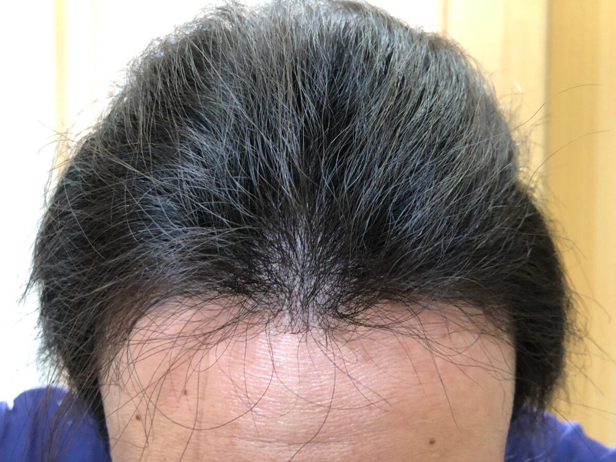 頭皮マッサージを初めて3か月経過しました。顔回りはこんな感じ。改めて写真で見ると落ち着いてきた気がする。。