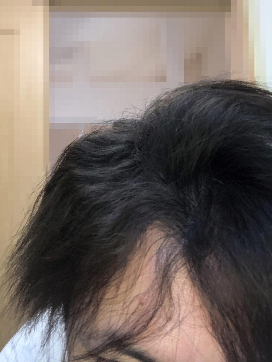 頭皮マッサージを始めて五ヶ月目。分け目の内側部分やサイド部分のウネリが強い