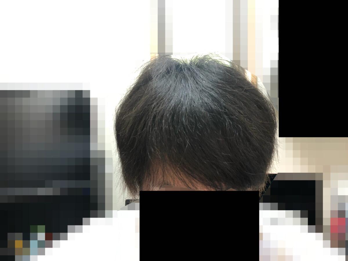 頭皮マッサージを続けて6か月目。正面から撮ってみました。毛先はチリチリしているけど全体的に落ち着いています。