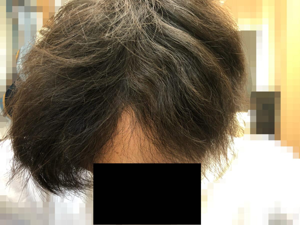 頭皮マッサージを続けて6か月目。側頭部周辺はまだまだウネウネ。触った感じもゴワゴワしております。