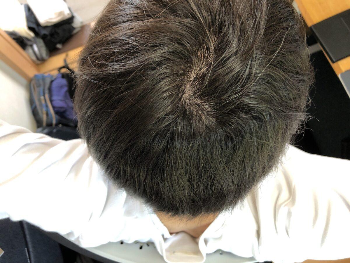 前回の縮毛矯正をかけてから頭皮マッサージを続けて一ヶ月。次第にウネウネし始めています。