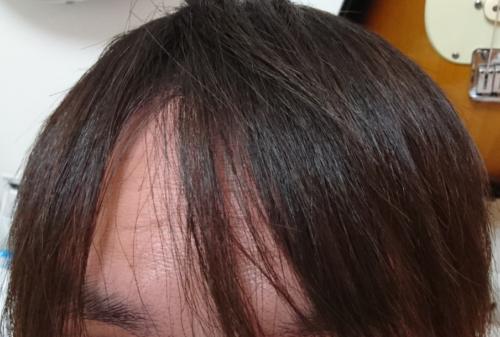縮毛矯正を続けて20年。まだまだ大丈夫そう。